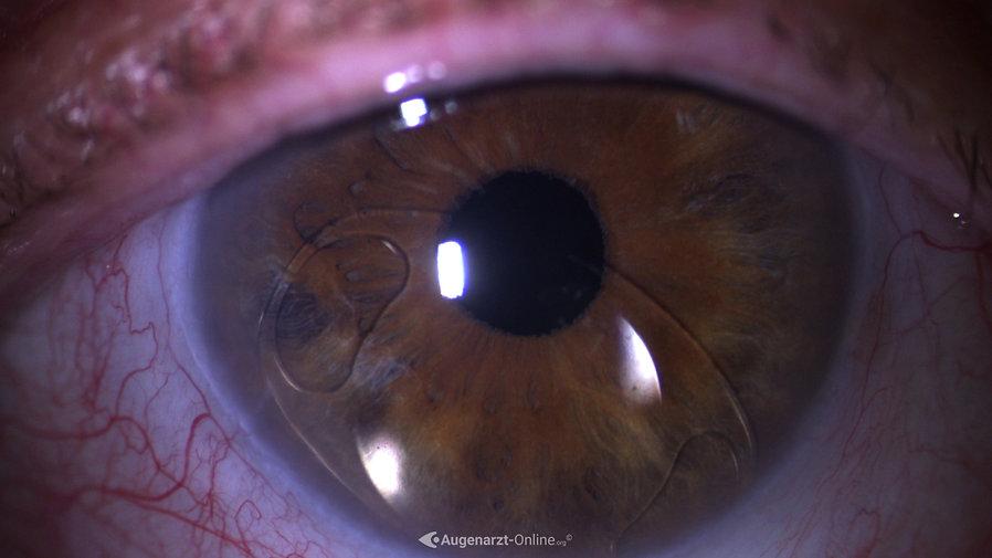 Luxierte Vorderkammerlinse (Verisyse)