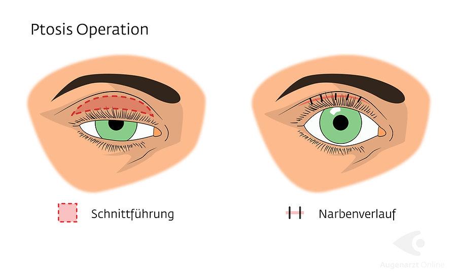 Ptosis Operation Lidsenkung Korrektur