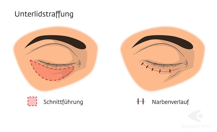 Lidstraffung-Unterlidstraffung-Augenarzt