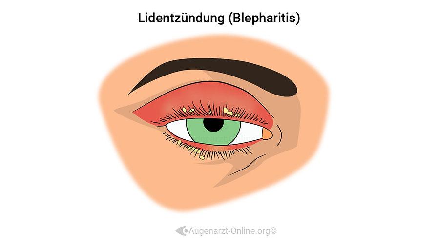 Lidrandentzündung, Blepharitis, geschwollene Augenlider, rotes Auge, rote Augen, Schwellung Augen