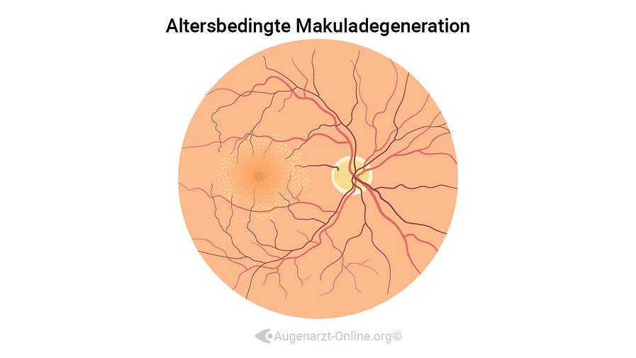 Grafische Darstellung von Drusen bei Altersbedingter Makuladegeneration