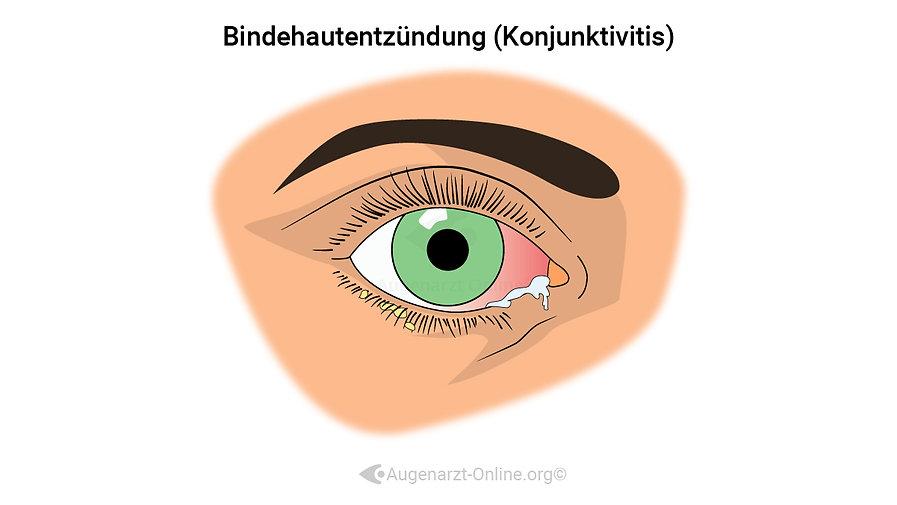Bindehautentzündung, Konjunktivitis, KE, Epidemica, Hyperämisiert,  rotes Auge, Augenentzündung