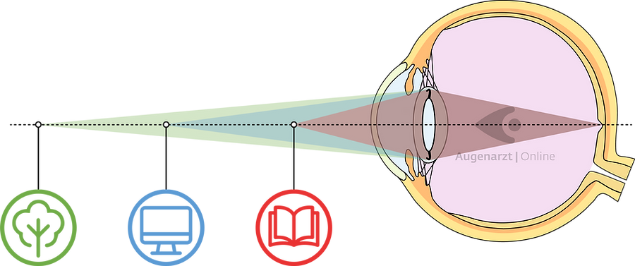 Grauer Star - Linsen Multifokallinsen.pn