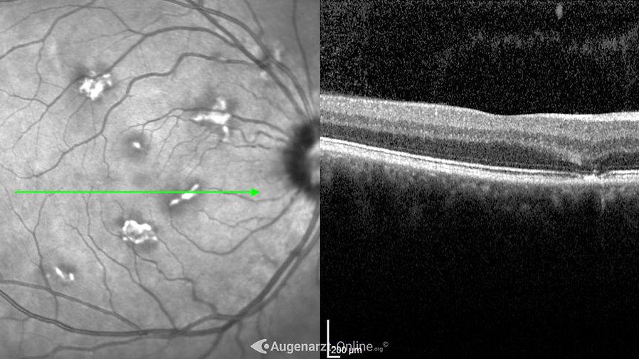 Optische Kohärenztomographie und Infrarotbild bei akuter posteriorer Multifokaler Plakoider Pigmentepitheliopathie (APMPPE)
