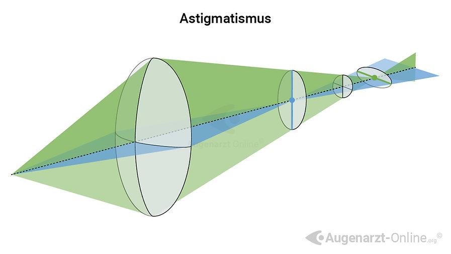 Optik bei Astigmatismus (Hornhautverkrümmung)