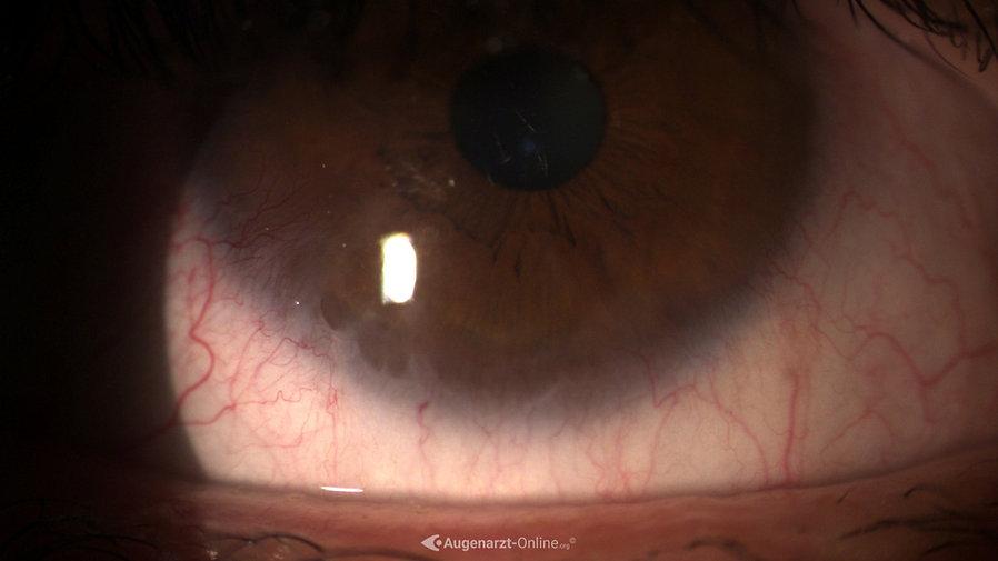 Auge nach Verätzung der Hornhaut durch Säure.