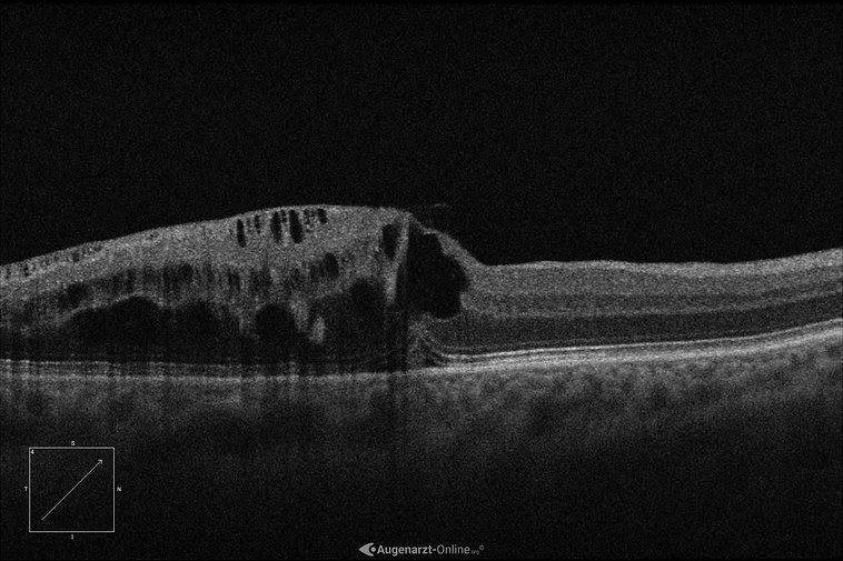 Optische Kohärenztomographie bei Astvenenthrombose (AVT)