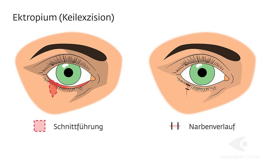 Lidstraffung-Ektropium-Augenarzt-Online-