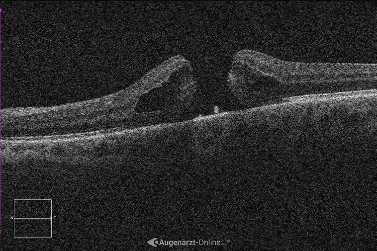 Makulaforamen in der optischen Kohärenztomographie