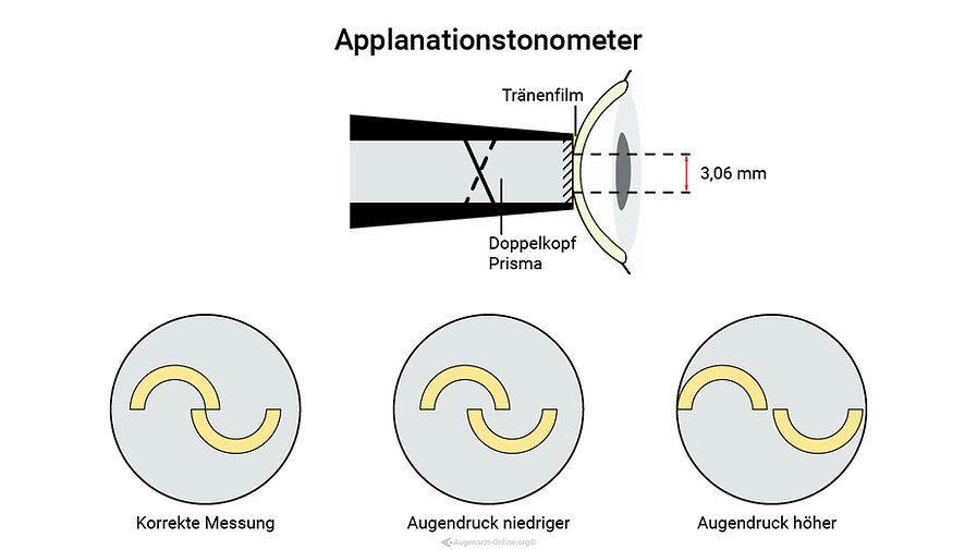 Goldmann Applanationstonometer zur Augendruckmessung mit Doppelkopfprisma