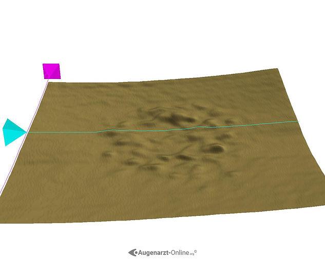 3D Darstellung von Drusen bei Altersbedingter Makuladegeneration (AMD)