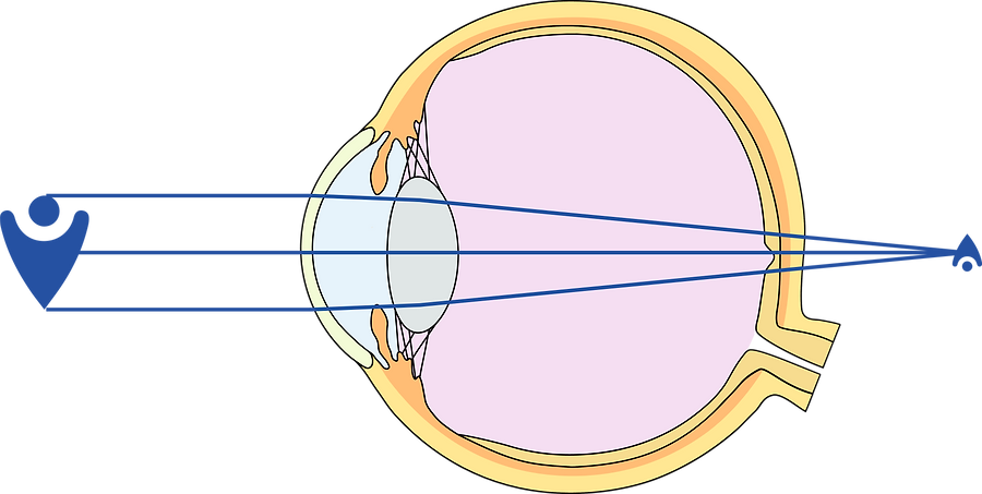 Weitsichtigkeit (Hyperopie) - Fehlsichtifkeit Brille Augenarzt