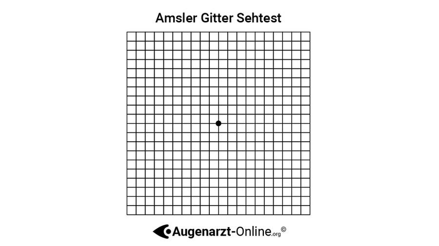 Amsler Gitter
