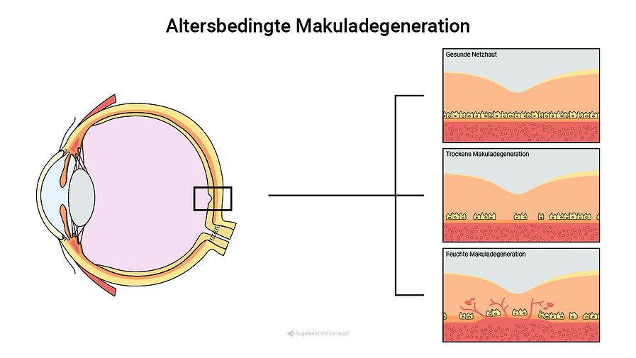 Stadien und Entwicklung der Altersbedingten Makuladegeneration von trocken zu feucht.