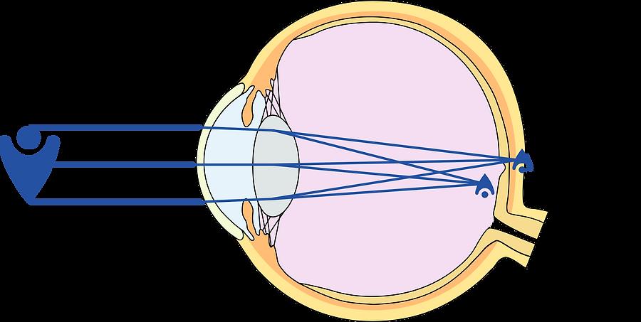 Refraktionsfehler Hornhautverkrümmung Astigmatismus - Augenarzt Brille