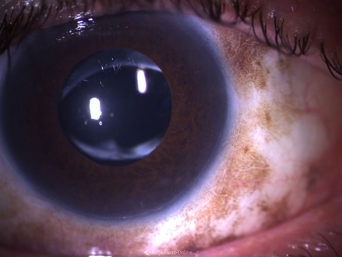 Bindehautmelanose mit typischen Hyperpigmentierungen.