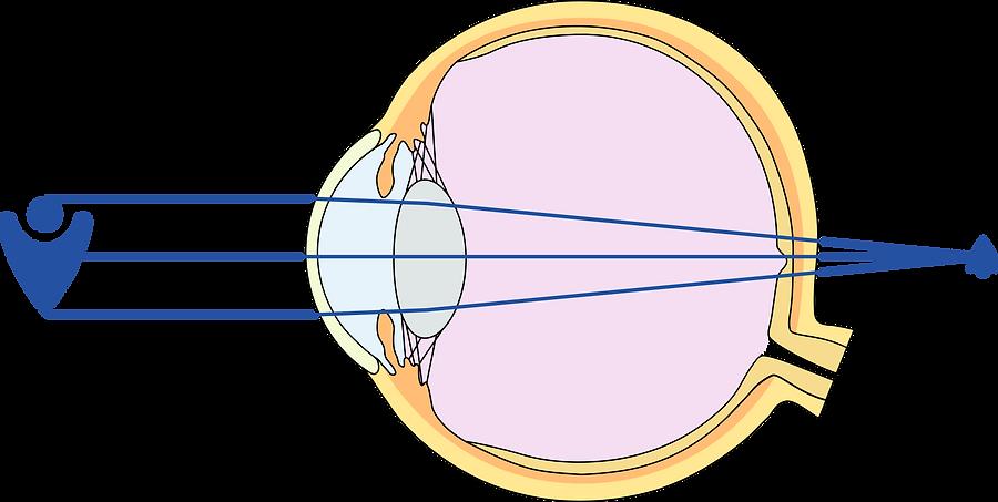 Alterssichtigkeit (Presbyopie) - Fehlsichtigkeit Brille Augenarzt