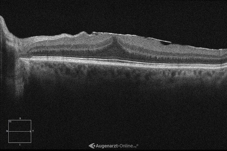 Netzhautfalten in der optischen Kohärenztomographie bei epiretinaler Gliose.