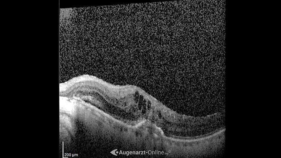 Optische Kohärenztomographie einer aktiven/ feuchten Altersbedingten Makuladegeneration (exsudative AMD).