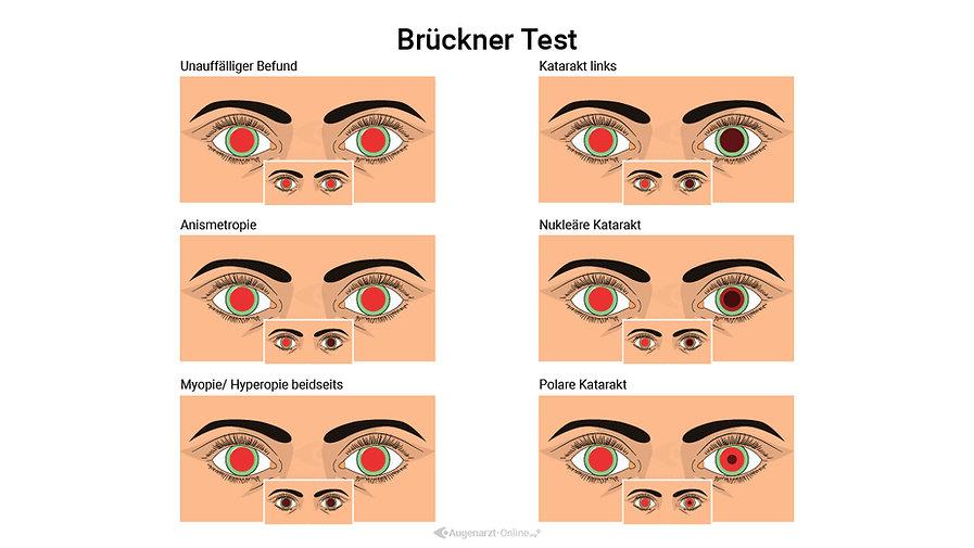 Brückner Test Auswertung, Fundus Rotreflextest, fundusrotreflex, Brückner Test Beispiel