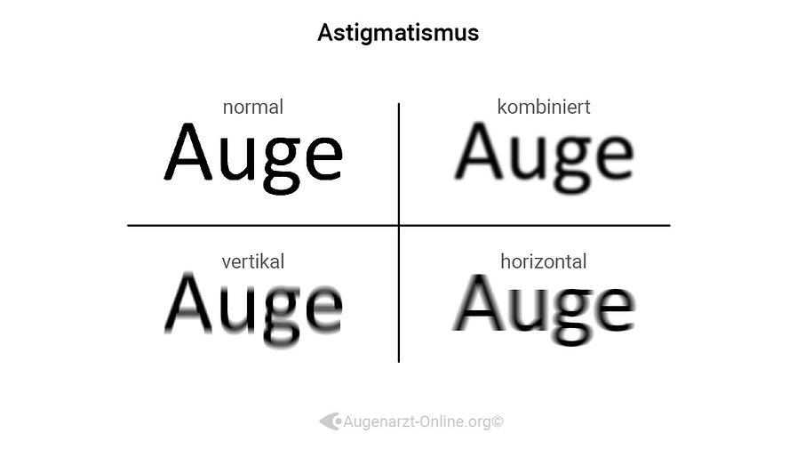 Sehen mit Astigmatismus, Stabsichtigkeit, Hornhautverkrümmung, Beispiel, Erklärung
