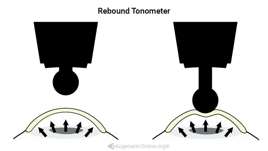 Funktionsweise und Erklärung der Funktionsweise der Rebound Tonometrie
