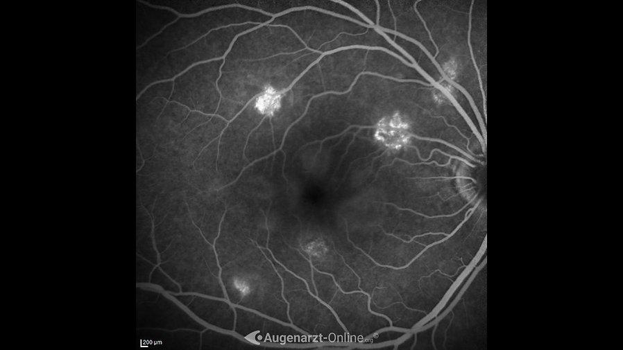 Fluoreszenzangiographie (08:41) bei akuter posteriorer Multifokaler Plakoider Pigmentepitheliopathie (APMPPE)