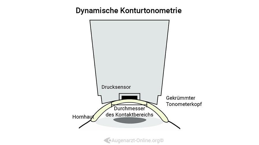 Dynamische Konturtonometrie Funktionsprinzip zur Messung des intraokulären Augendrucks