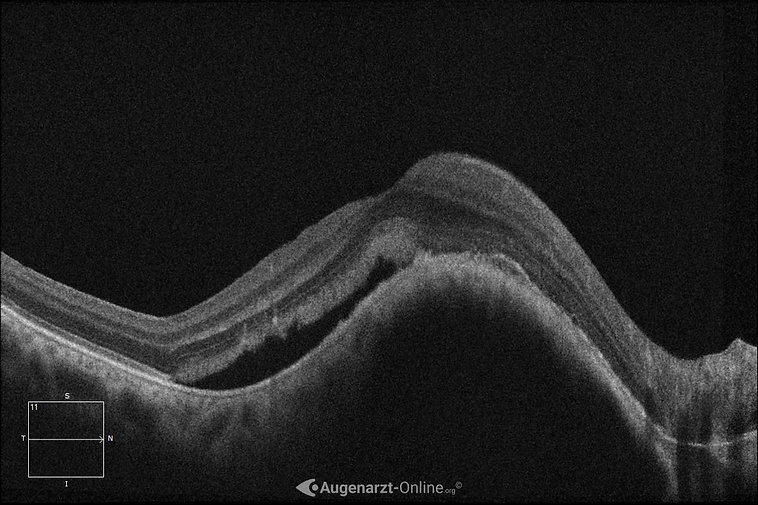 Optische Kohärenztomographie bei Aderhautmelanom