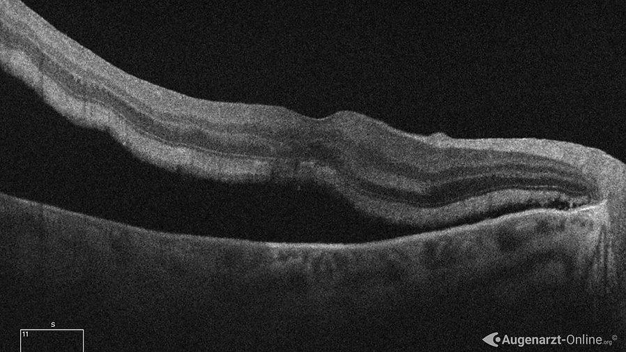 Optische Kohärenztomographie (OCT) einer Netzhautablösung. Es zeigt sich eine Abhebung der neurosensorischen Schicht mit Unterspülung der Fovea (Makula Off).