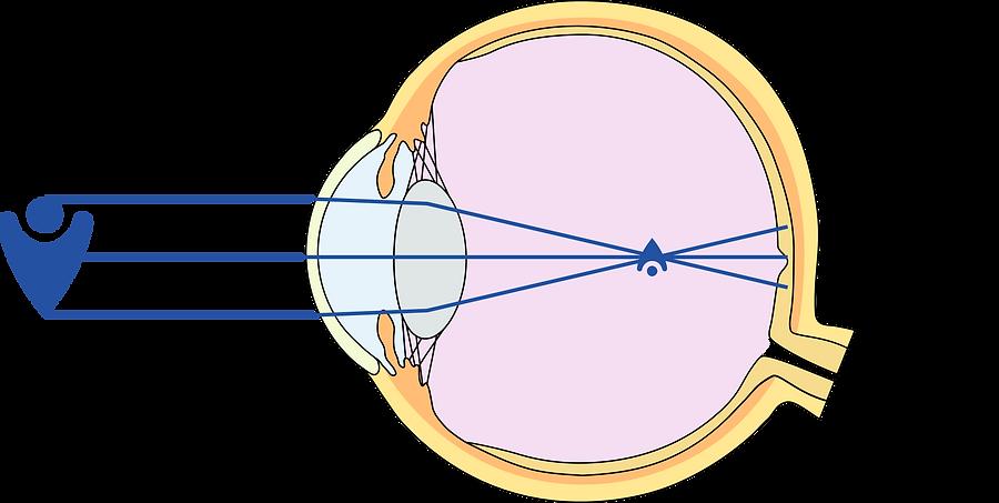 Kurzsichtigkeit Myopie Augenarzt Online Augen Wien