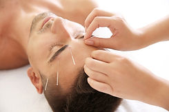 Man-Cosmetic-Acupuncture.jpg