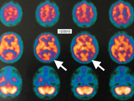 Hyperbaric oxygen therapy for Alzheimer's dementia with positron emission tomography imaging