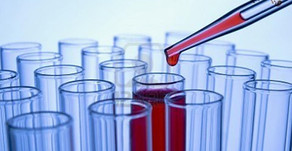 Investigación en el cadáver en una intoxicación