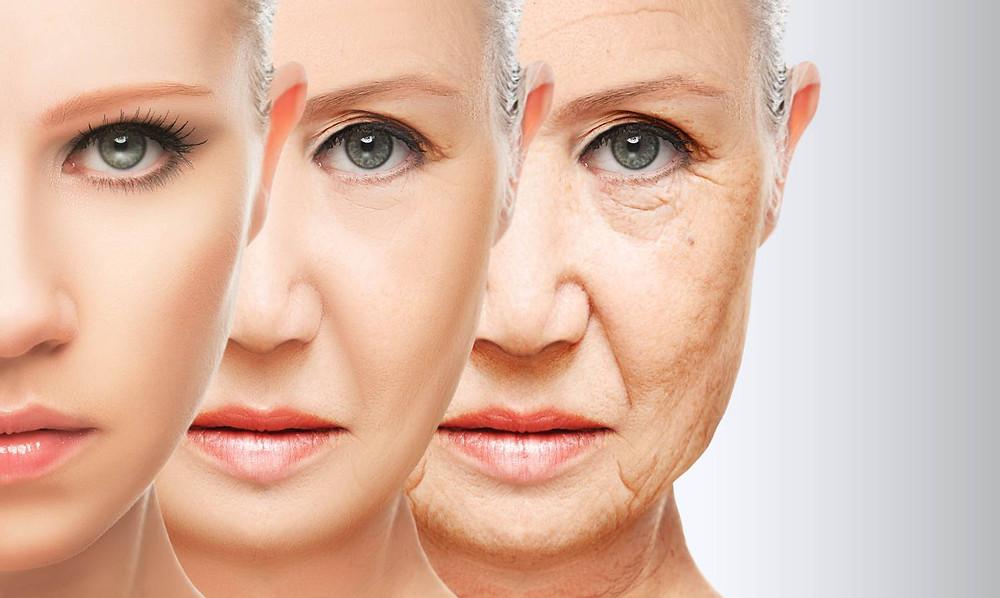 Imagen desvanecimiento de arrugas