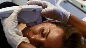 Ulthera Ultra Sound Ultherapy