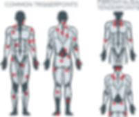 Trigger Point locations.png