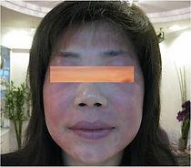 allerge1.jpg
