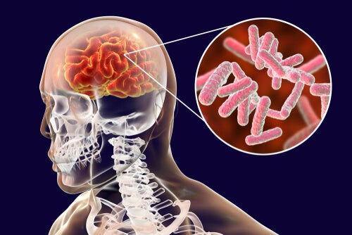 cerebro-bacterias.jpg