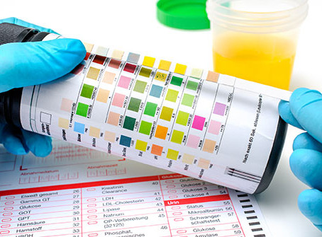 Simple urine test could improve early detection of bladder cancer – WHO study