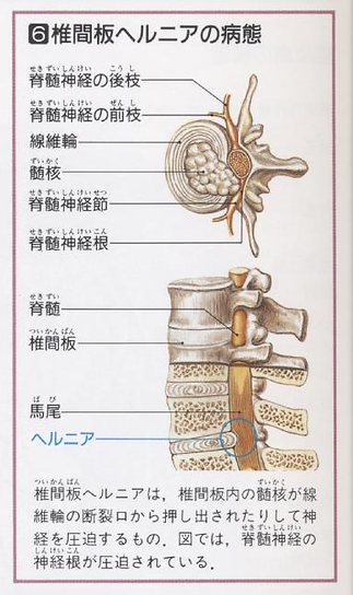 腰部ヘルニア | 和鍼治療院 | 大阪府