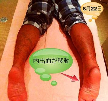 肉離れ 大阪本町 鍼灸