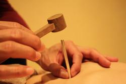 東洋医学の鍼灸治療 和鍼治療院