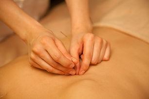 大阪本町の鍼灸治療