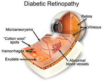 diabetes eye