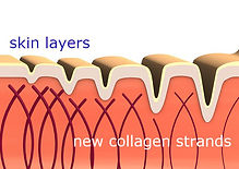 collagen-new-strands.jpg