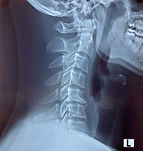 x-ray-reverse-cervical-lordosis.jpg