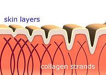 collagen-skin-comp.jpg