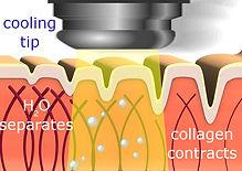 collagen-heating.jpg