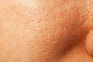 skin-condition-large-pores-350.jpg